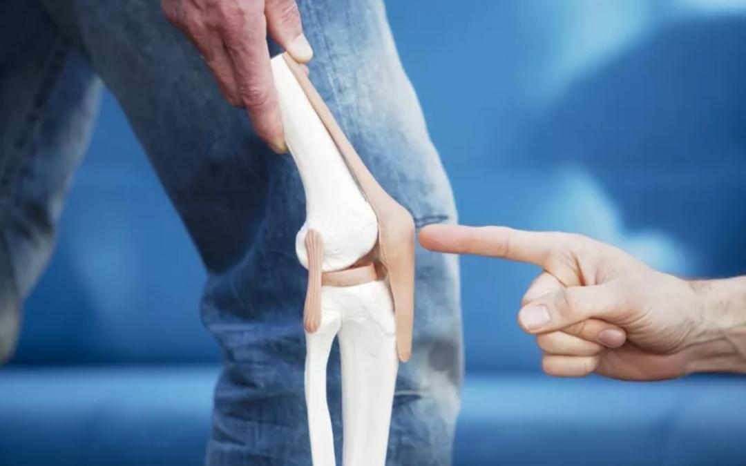 Elülső térdfájdalom: Erősítsem a csípőm? De a térdem fáj!